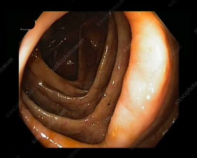 Healthy human colon, endoscope view