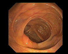 Healthy large intestine