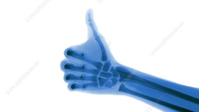 X-ray thumbs up in slow motion