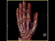 Rotating scan of a hand