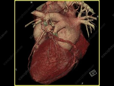 Rotating scan of a heart