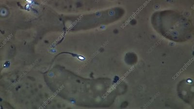 Swimming human sperm