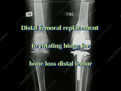 Distal femoral replacement
