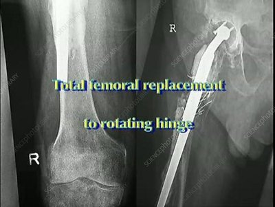 Total femoral replacement