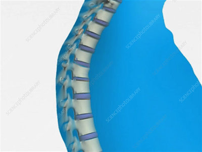 Spinal fracture animation