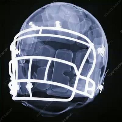 X-Ray of a football helmet