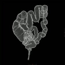 Large intestine, X-ray model