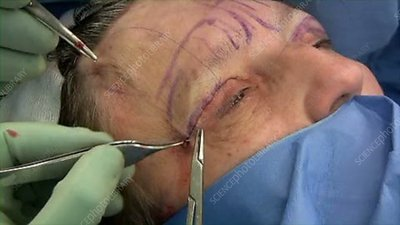 Facelift operation