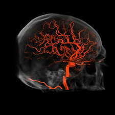 Brain blood vessels, CT scan