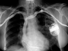 Pacemaker and defibrillator