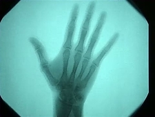 X ray of human hand and arm