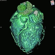 Enlarged coronary arteries, 3D CT scan