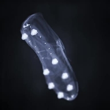 X-ray of a football boot