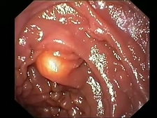Duodenal lipomas, endoscope view
