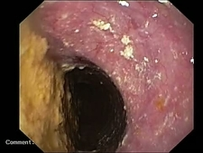 Stomach cancer, endoscope view