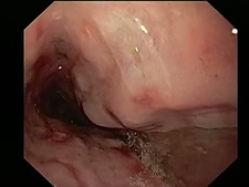 Hiatus hernia, endoscope view