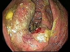 Caecal cancer, endoscope view