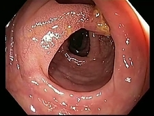 Premalignant colonic growth