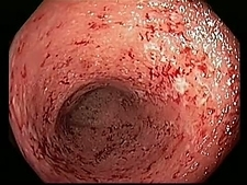 Ulcerative colitis, endoscope view