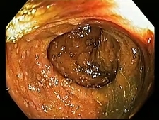 Lymphoid hyperplasia, endoscope view
