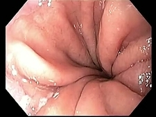 Oesophagus, endoscope view