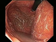 Atrophic gastritis, endoscope view