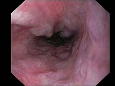 Oesophageal varicose veins endoscope view