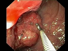 Rectal cancer, endoscope view