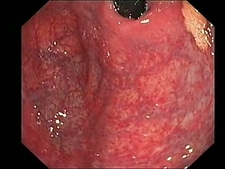 Xanthoma, endoscope view