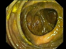 Stained colon, endoscope view