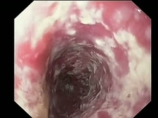 Oesophageal thrush, endoscope view