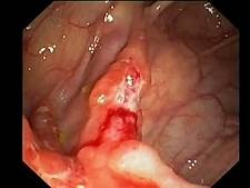 Crohn's disease, endoscope view