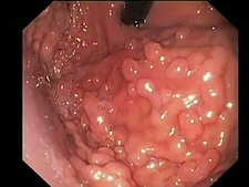 Benign stomach growths, endoscope view