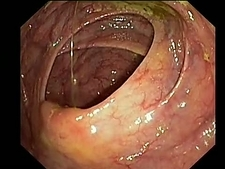 Small intestine, endoscope view