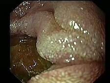 Diverticulosis, endoscope view