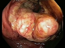 Colon cancer, endoscope view