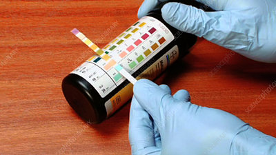Urinalysis test kit