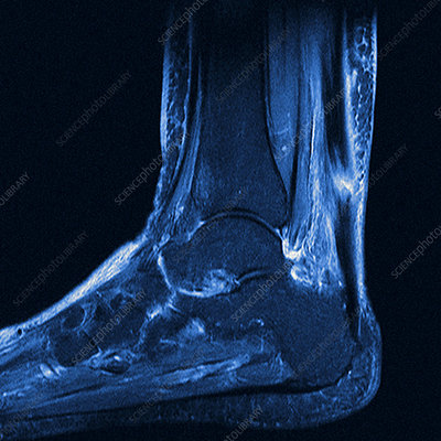 Torn Achilles tendon, MRI scan