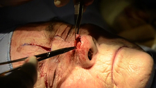 Skin cancer nose surgery, flap stitching