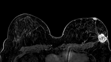 Breast cancer, bilateral breast MRI