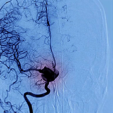 Aneurysm in the brain, angiography