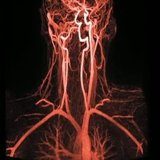 Artery damage, MRA scan sequence