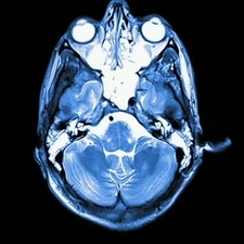 Brain injury, MRI scan sequence