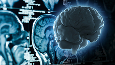 Rotating Brain on MRI Scan Background