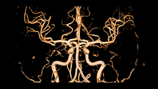 Brain arteries, 3D MRA scan