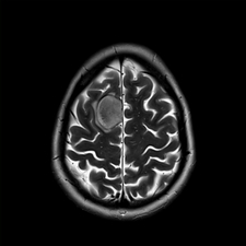Glioma brain tumour, MRI sequence