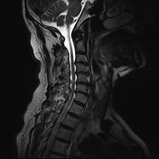Degenerative cervical spine, MRI sequence