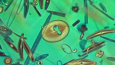 Diatoms, polarised light microscopy