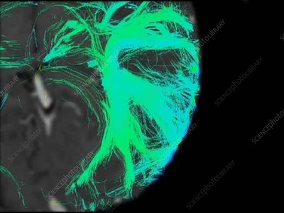 Brain pathways, 3D DTI scan