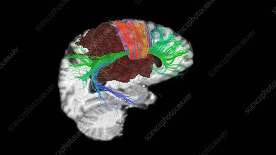 Brain tumour site, 3D DTI scan
